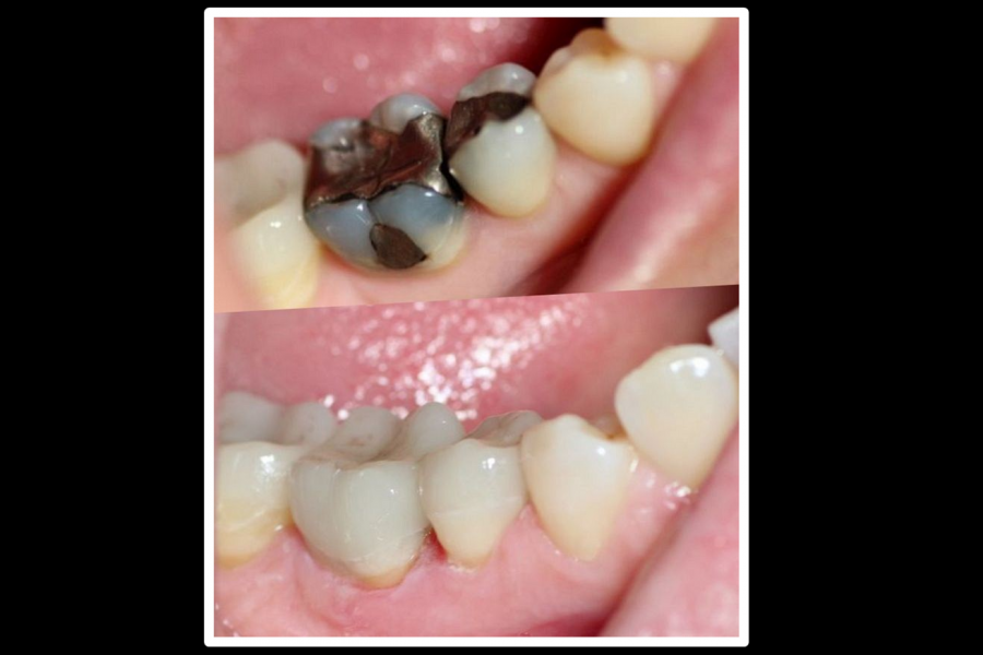 Safe removal of amalgam fillings